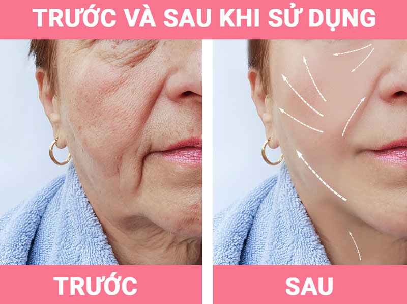 tac-dung-chinh-cua-vien-truface-essence-ultra-nubeauty-4