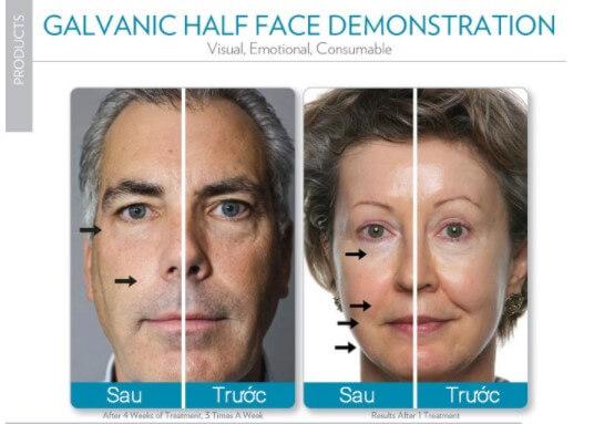 truoc-va-sau-dieu-tri-bang-galvanic-spa-nubeauty.com.vn