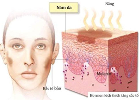 tai-sao-nen-dieu-tri-nam-tu-ben-trong-nubeauty.com.vn