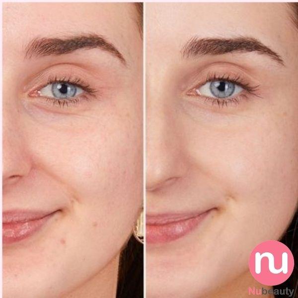 tinh-chat-duong-trang-da-obagi-clinica-nubeautyl-vitamin-c-arbutin-brightening-serum-nubeauty-6.jpg