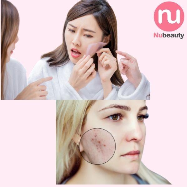kem-chong-nang-cho-da-dau-mun-image-prevention-spf-32-daily-matte-moisturizer-nubeauty-7.jpg