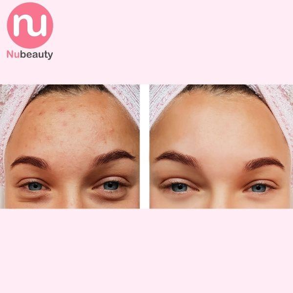 dung-dich-dac-tri-mun-obagi-clenziderm-md-pore-therapy-nubeauty-2.jpg
